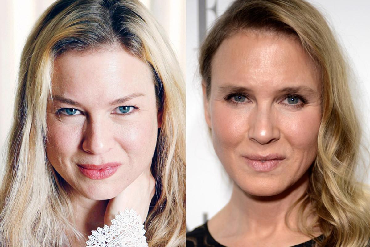 Cirugia estetica fotos antes y despues 91