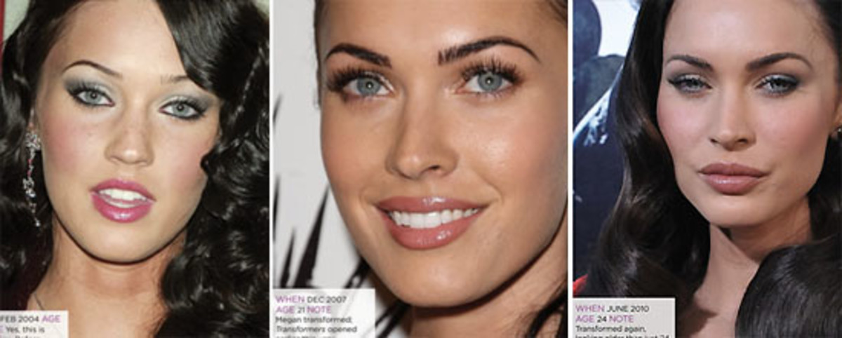 cosmetic enhancement_Megan Fox_The Kit.ca