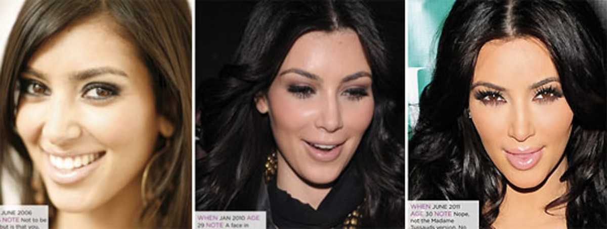 cosmetic enhancement_Kim Kardashian_The Kit.ca