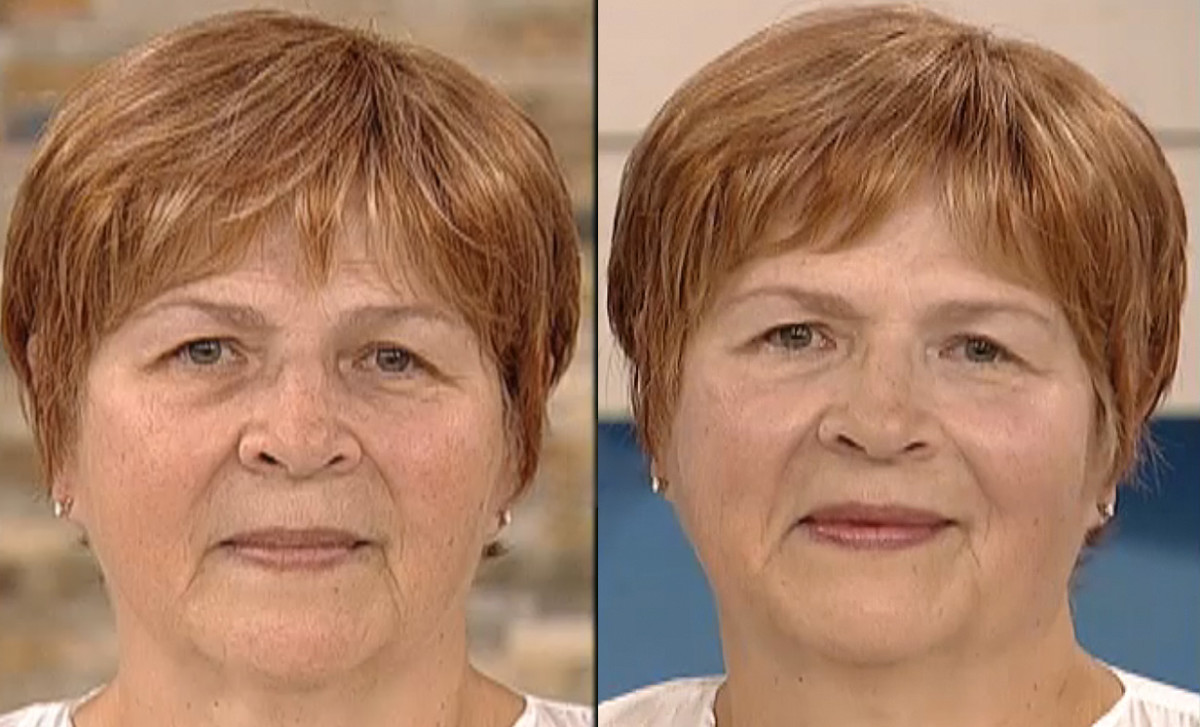 Ronnie_before and after_Boxx Cosmetics_TheShoppingChannel