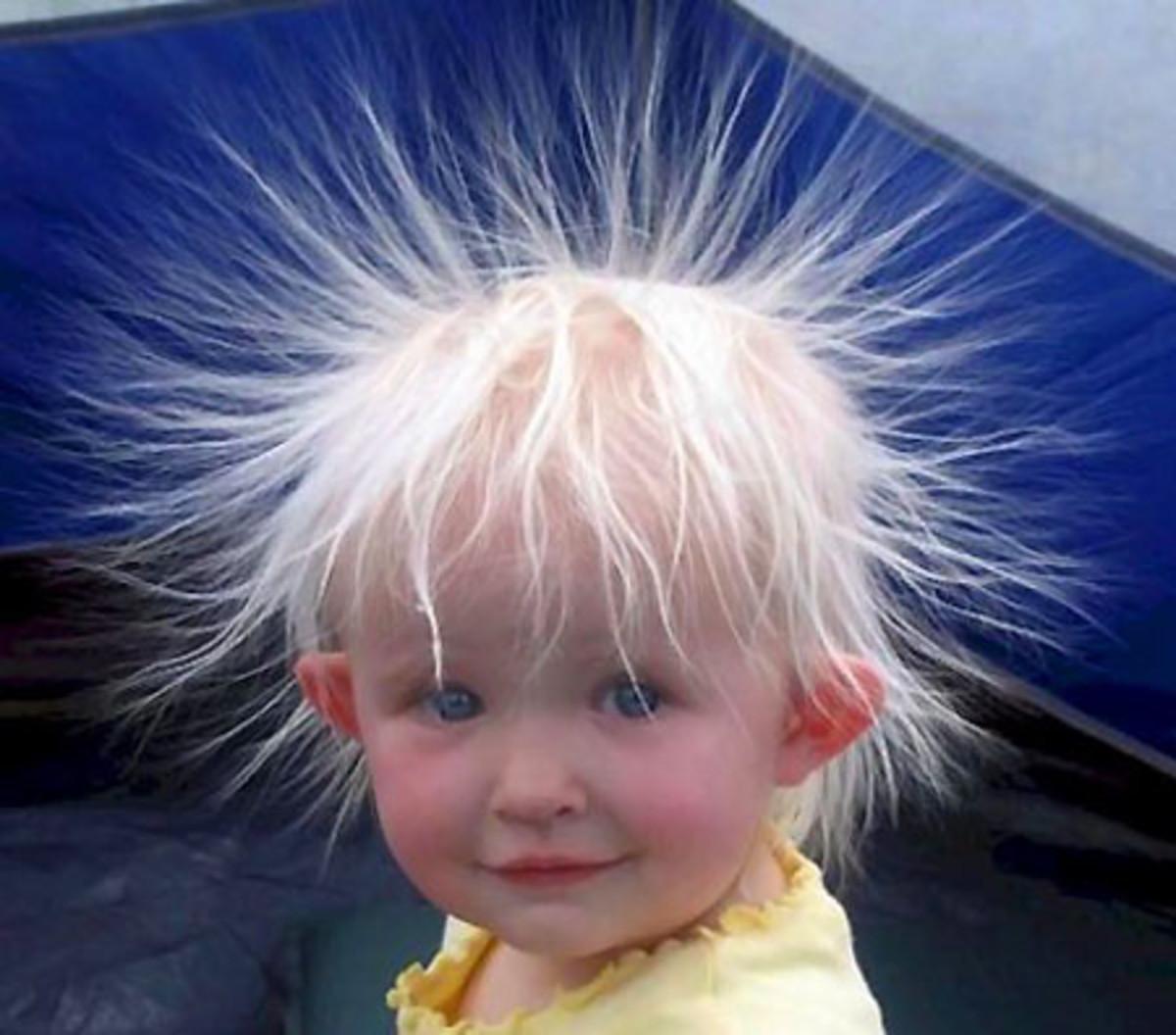 static-hair