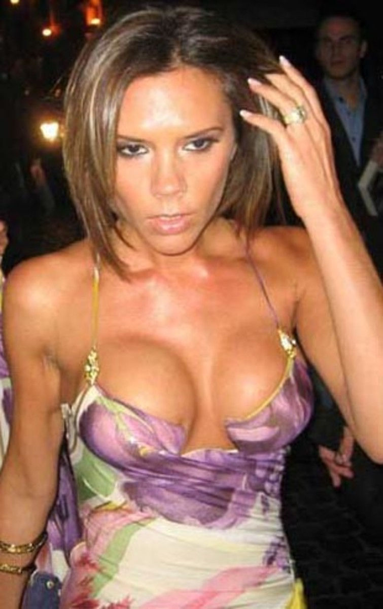 Deflation: Victoria Beckham gets Breast Reduction on Advice from Anna  Wintour