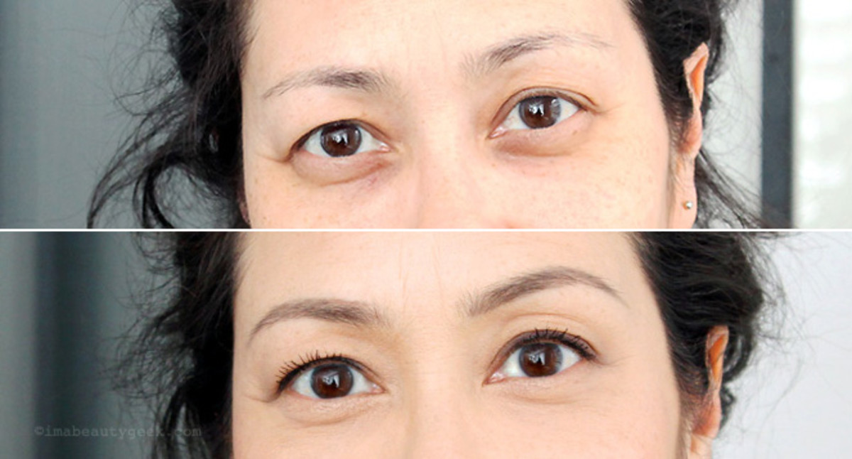 how to fix brown dark circles_before and after photos