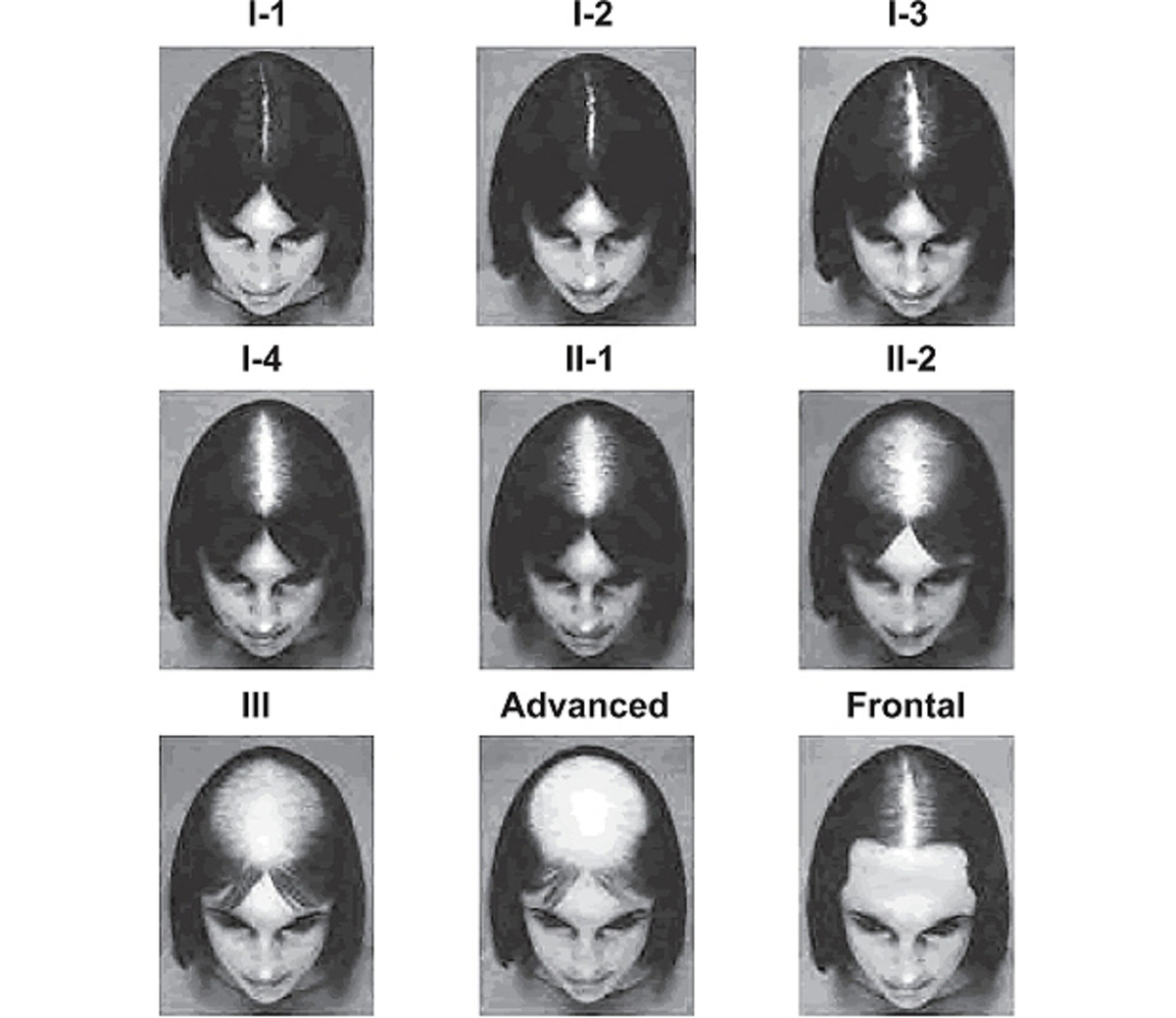 The Savin Scale of female hereditary hair loss (via the American Hair Loss Association).