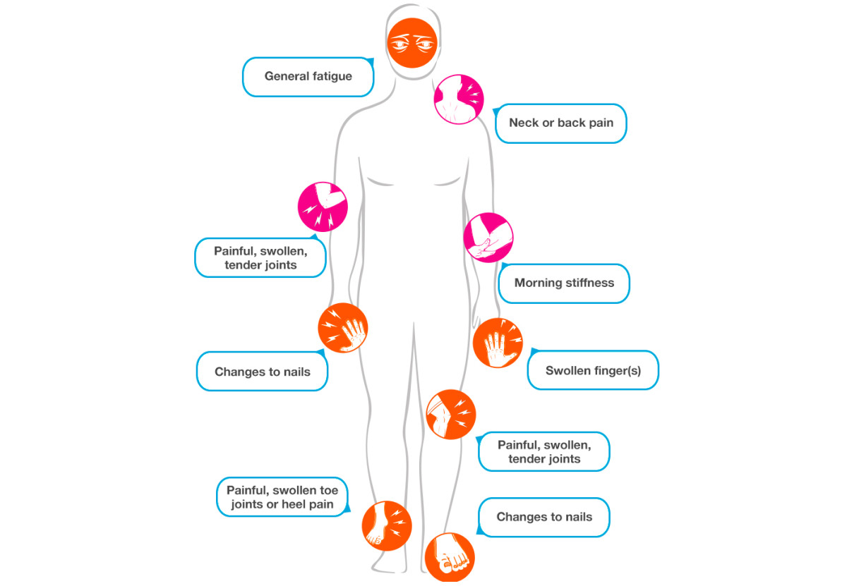 Psoriatic arthritis: a map of symptoms (via breakthedoublewhammy.ca)